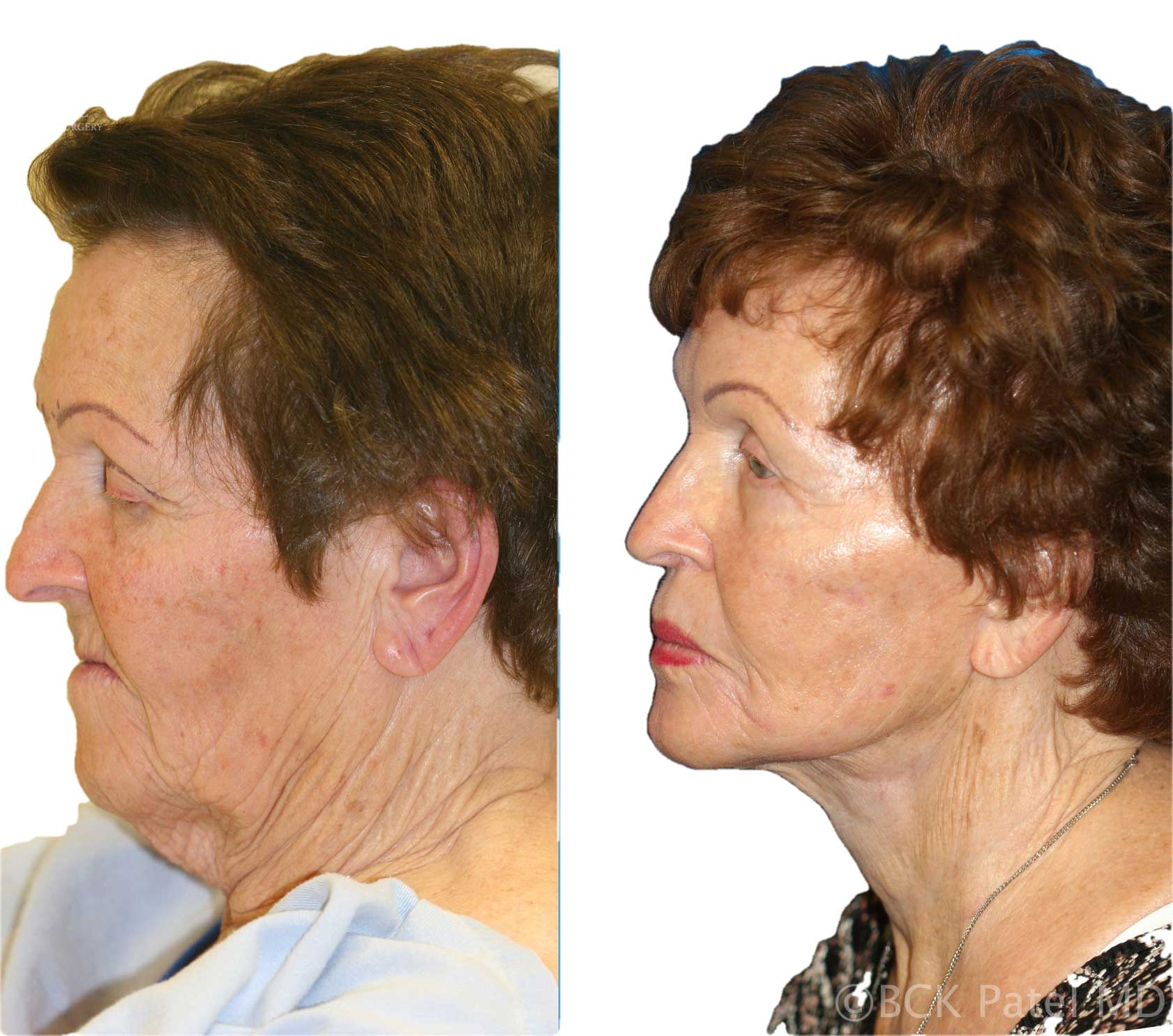 englishsurgeon.com is the home of the English Surgeon: Dr. BCK Patel performs a facelift and necklift in a female to show beautiful facelift results