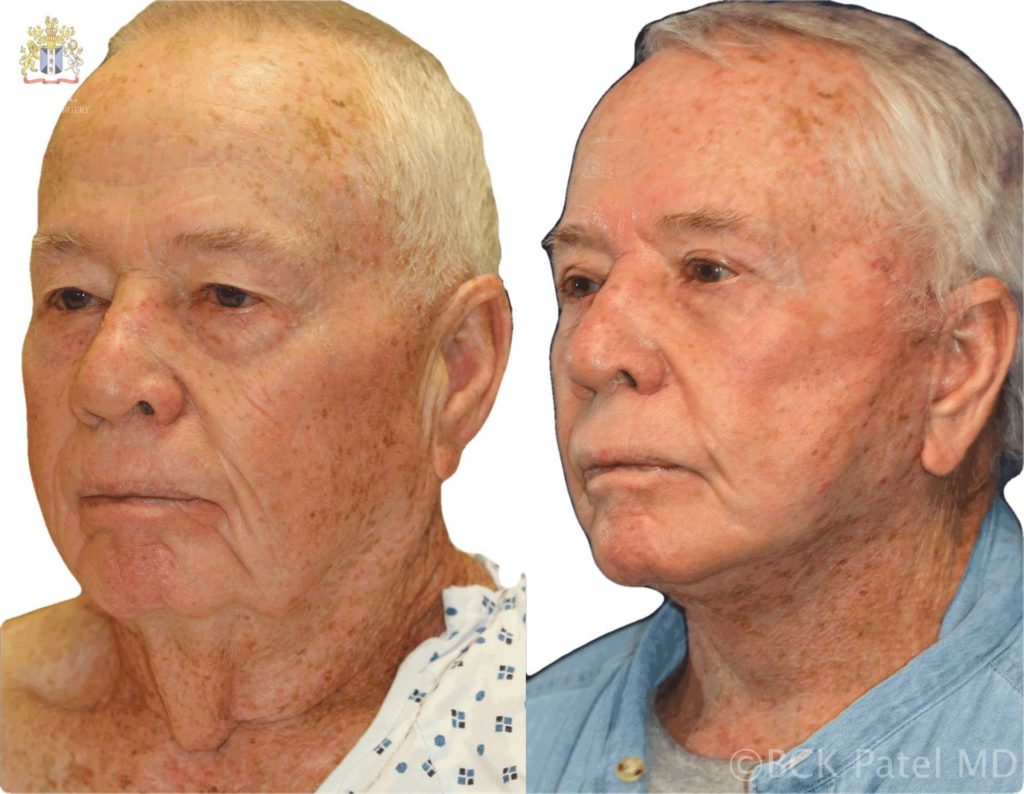 Facelift and necklift Dr. Bhupendra Patel Md, Salt Lake City, Saint George, London, England