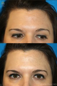 Before and after photos of results of treating melasma with a chemical peel by Dr. BCK Patel MD, FRCS of Salt Lake City, Utah and St. George