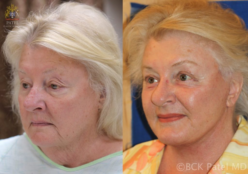 Results of a facelift and necklift in a female performed by Dr. Bhupendra Patel MD of Salt Lake City, Saint George, and London, England