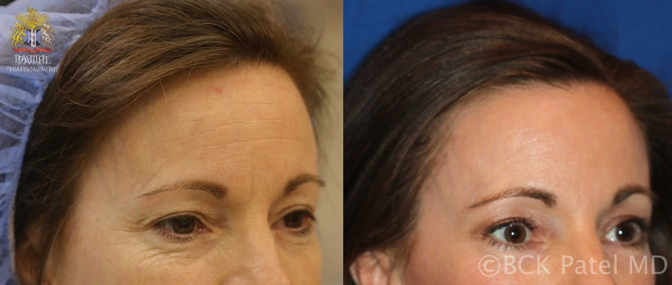 Results of using the CO2 fractionated laser (also known as Fraxel) to improve forehead lines and pigment by Dr. Bhupendra C. K. Patel MD, FRCS