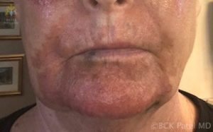 CO2 laser treatment with upper and lower blepharoplasty and fat grafts by Dr. Bhupendra C. K. Patel MD of Salt Lake City, St. George, London, England