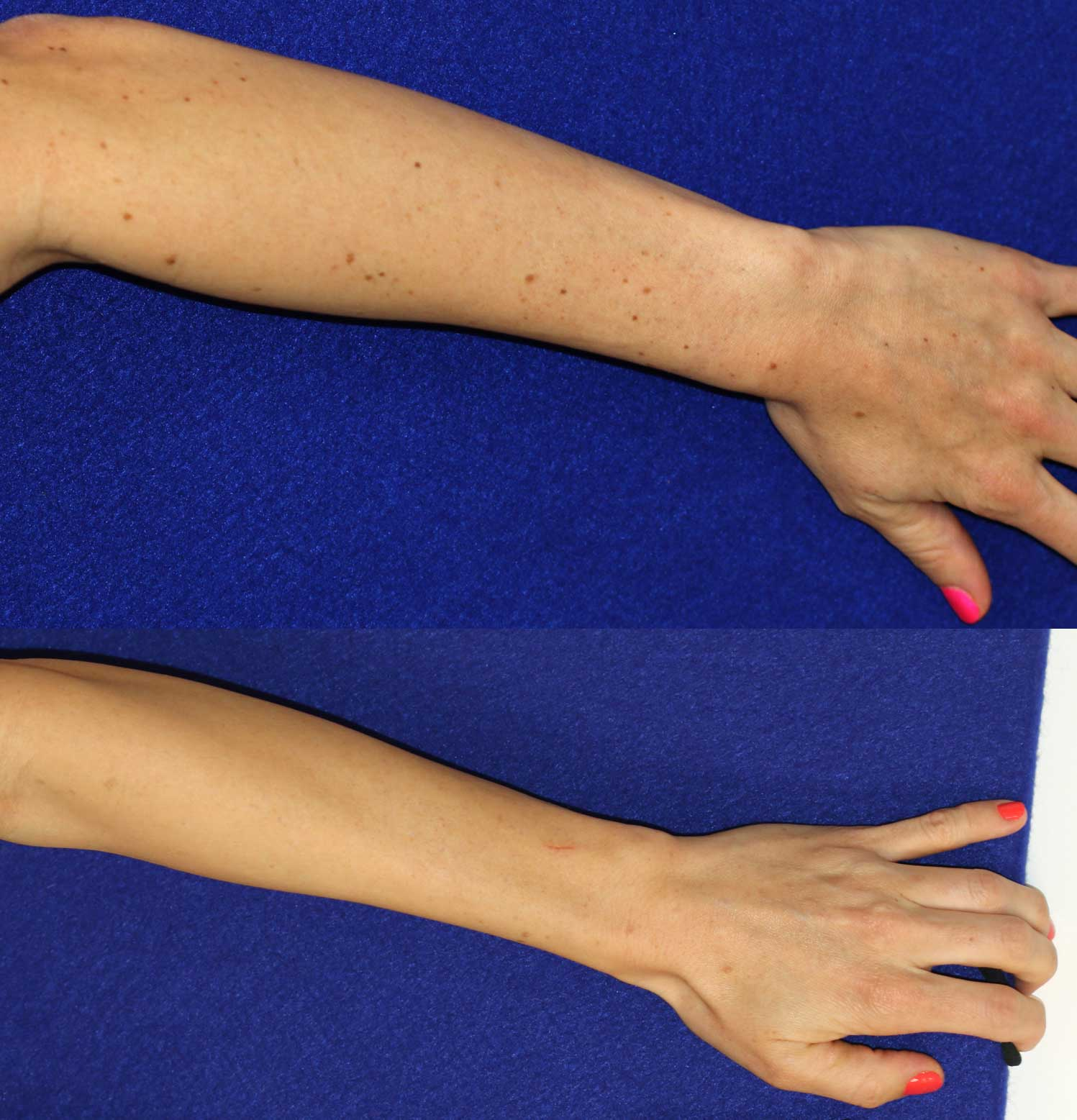 Laser treatment to arm and hand spots
