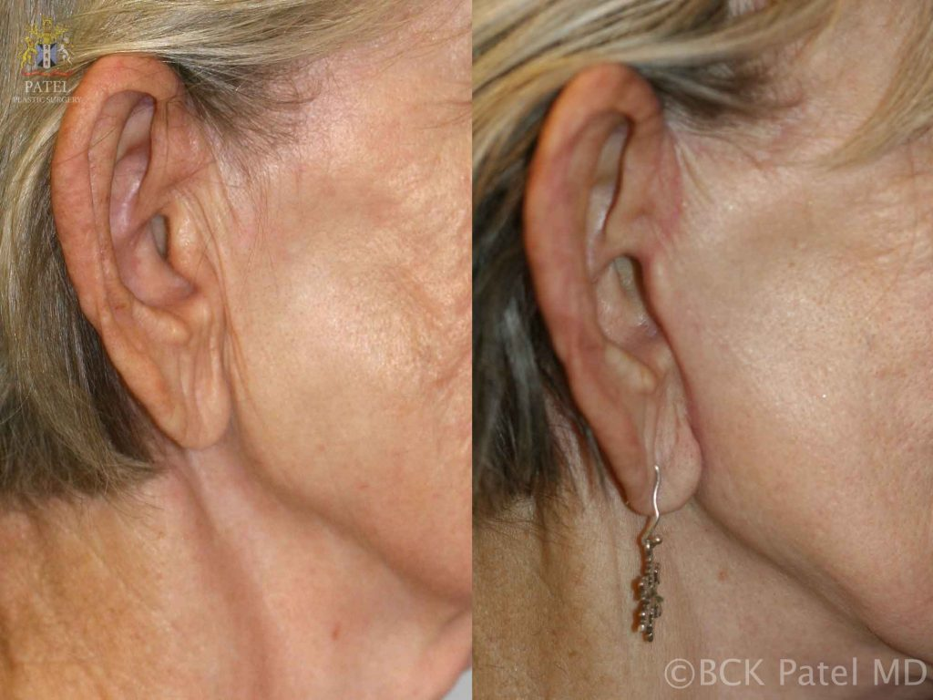 Photos of the right preauricular incisions after a facelift
