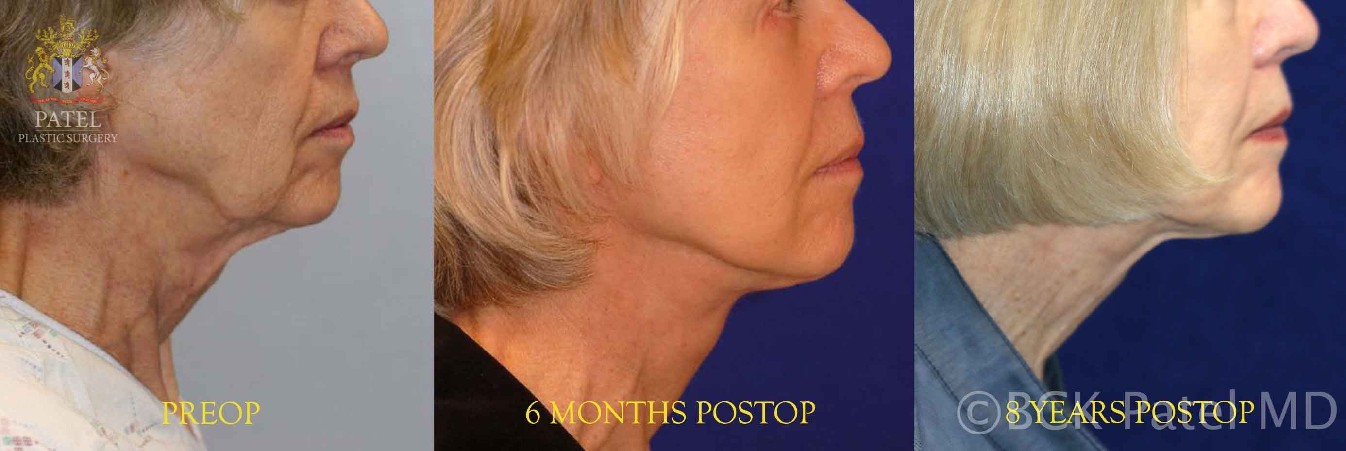 Bhupendra C. K. Patel MD results of facelift in a lady with long term results illustrated Patel Plastic Surgery