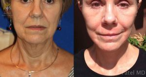 Facelift before-and-after by Dr. Bhupendra Patel MD of Salt Lake City and Saint George Utah