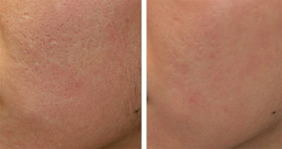 Acne scar reduction with the use of Nd:YAG picosecond lasers