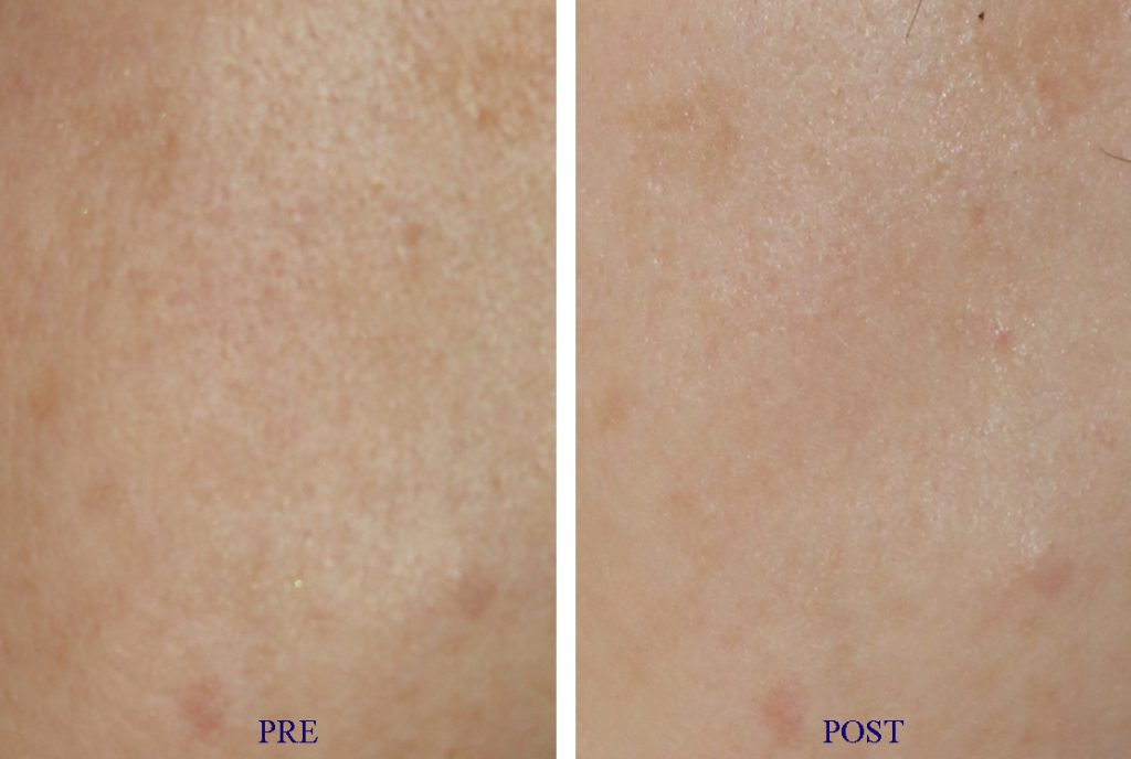 Pore reduction with advanced lasers