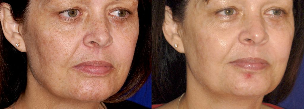 Improvement in skin tone and tightness with picosecond lasers